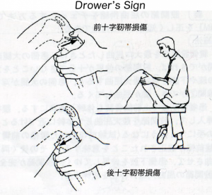 Drower's Sign
